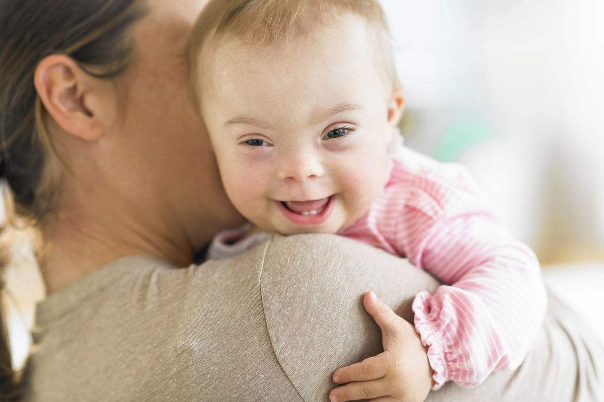 Tempat Pengobatan Down Syndrom di Depok Paling Aman dan Direkomendasikan