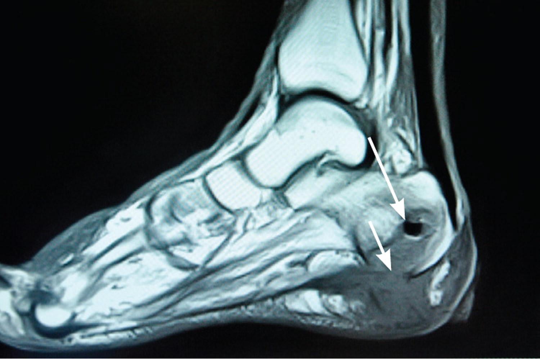 Tempat Pengobatan Osteomielitis atau Infeksi Tulang di Tangerang Terpercaya