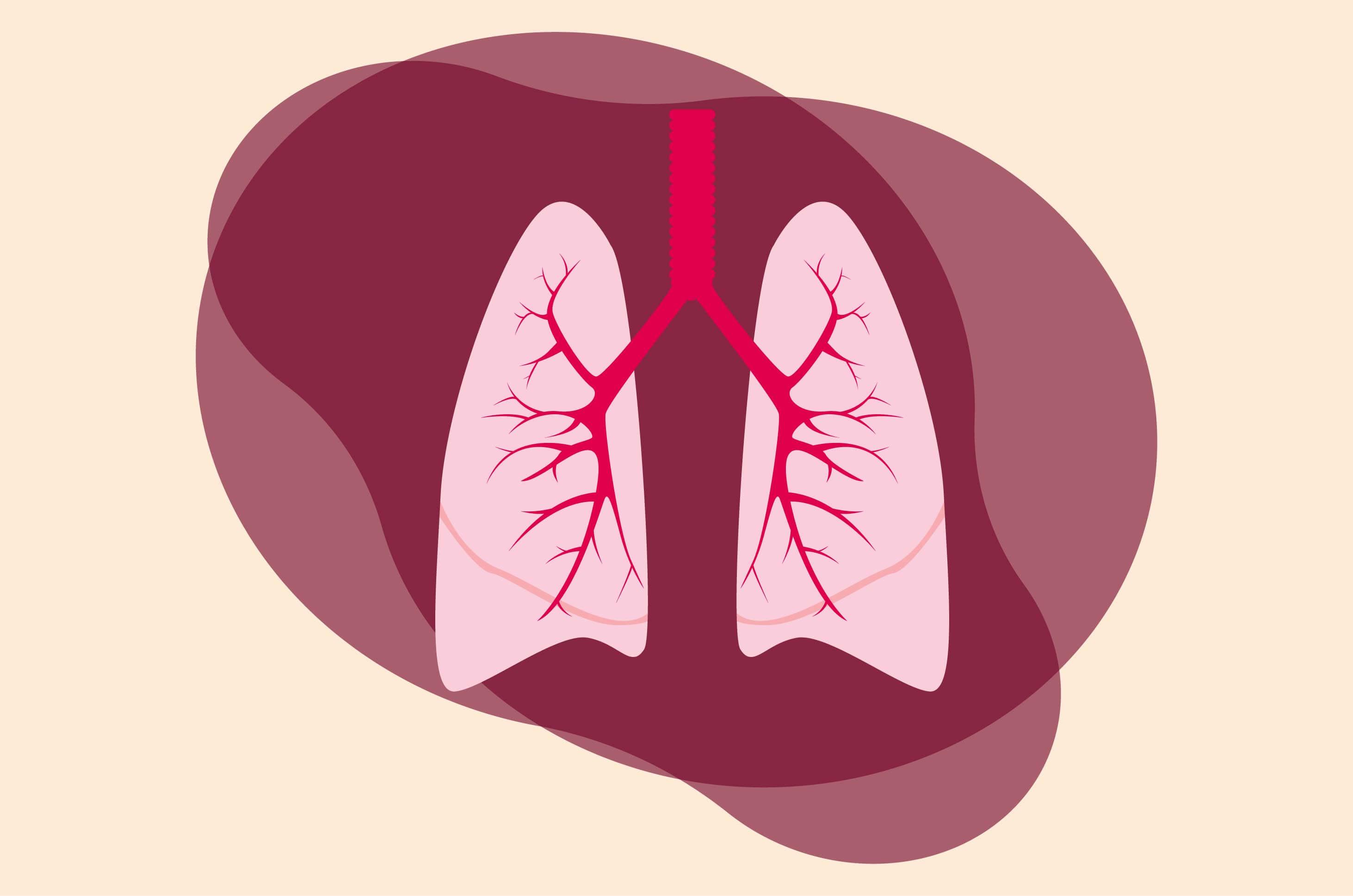 Tempat Pengobatan Pneumonia di Tangerang Paling Dicari Karena Mujarab