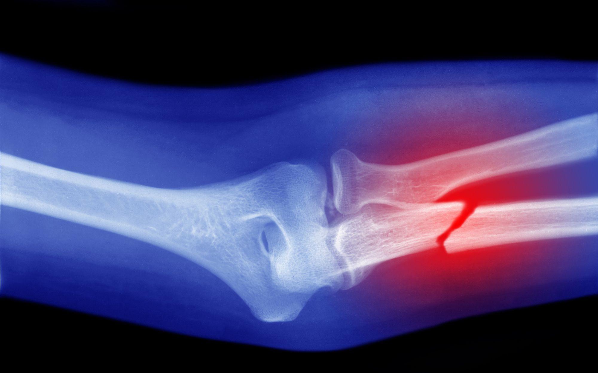 Terapi Patah Tulang di Tangerang dan Palembang Paling Direkomendasikan