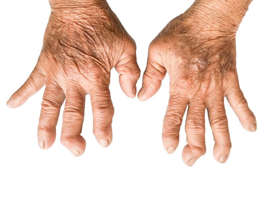 Tempat Pengobatan Rematik atau Rheumatoid Arthritis (RA) di Pekanbaru dan Bekasi Populer