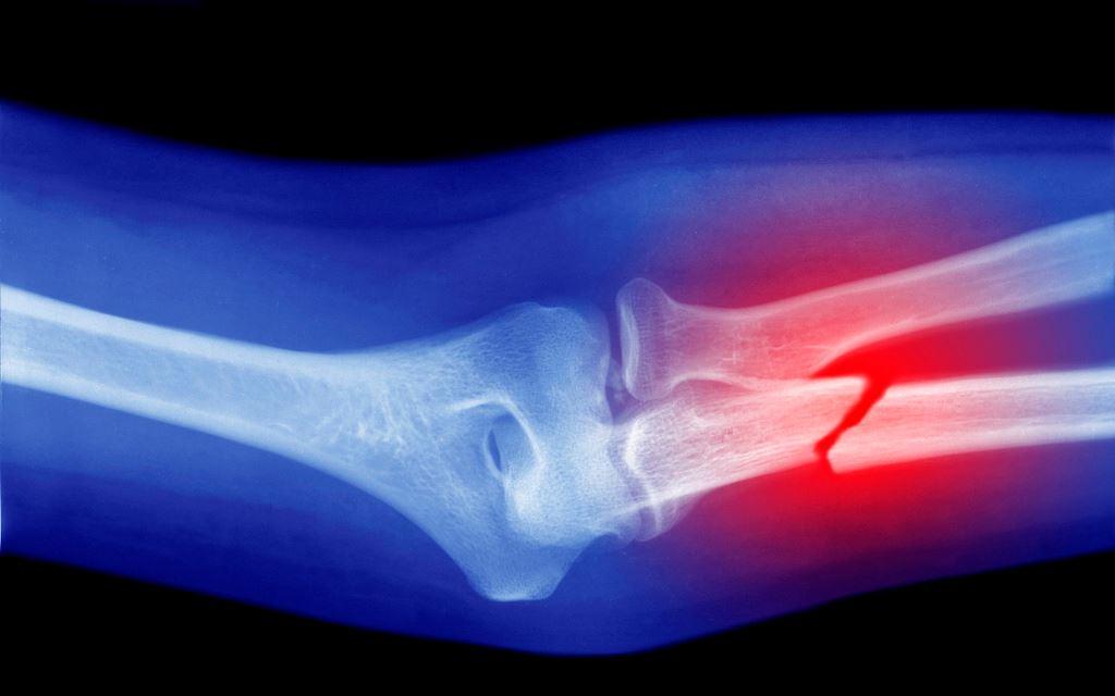 Terapi Patah Tulang di Pekanbaru dan Bekasi Alternatif Terbaik dan Tanpa Obat